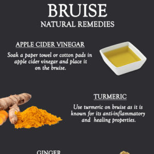 NATURAL REMEDIES TO GET RID OF BRUISE