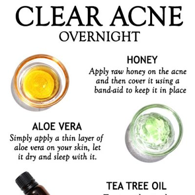 NATURAL REMEDIES TO CLEAR ACNE OVERNIGHT