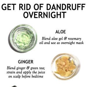 GET RID OF DANDRUFF OVERNIGHT