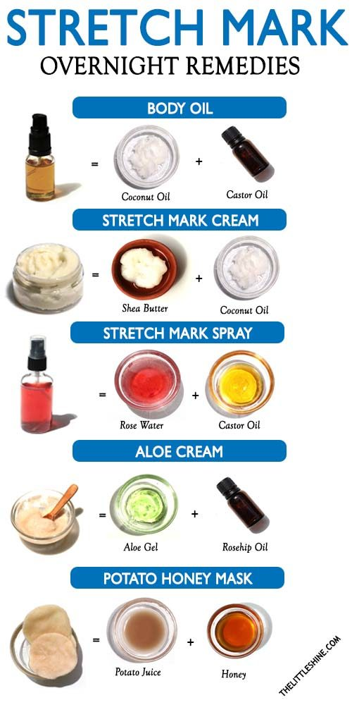 OVERNIGHT REMEDIES FOR STRETCH MARKS