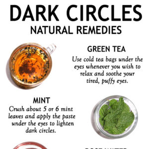 TOP 5 HOME REMEDIES FOR DARK CIRCLES