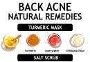 BACK ACNE REMEDIES