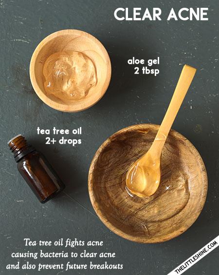 Aloe vera to clear acne -