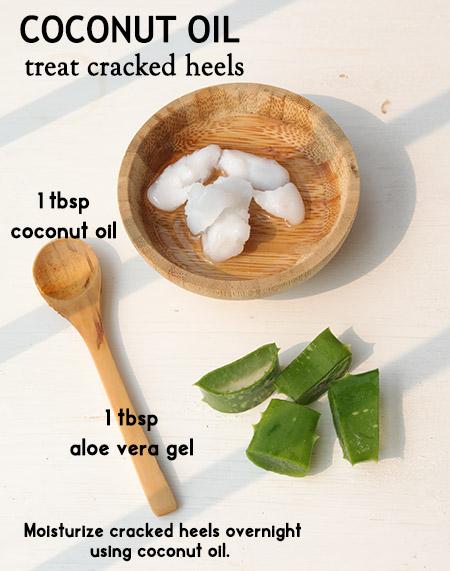 Cracked heels -