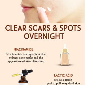 6 Best skincare ingredients to get rid of acne scars and dark spots
