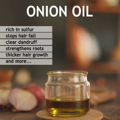 Onion Oil Recipe for faster hair growth and stop hair fall
