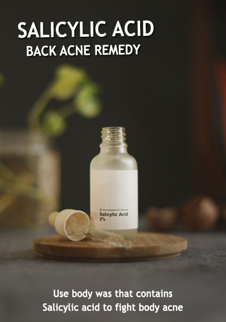 BODY ACNE TREATMENT WITH PRODUCTS AND REMEDIES